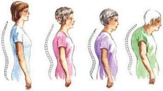 improving your back posture