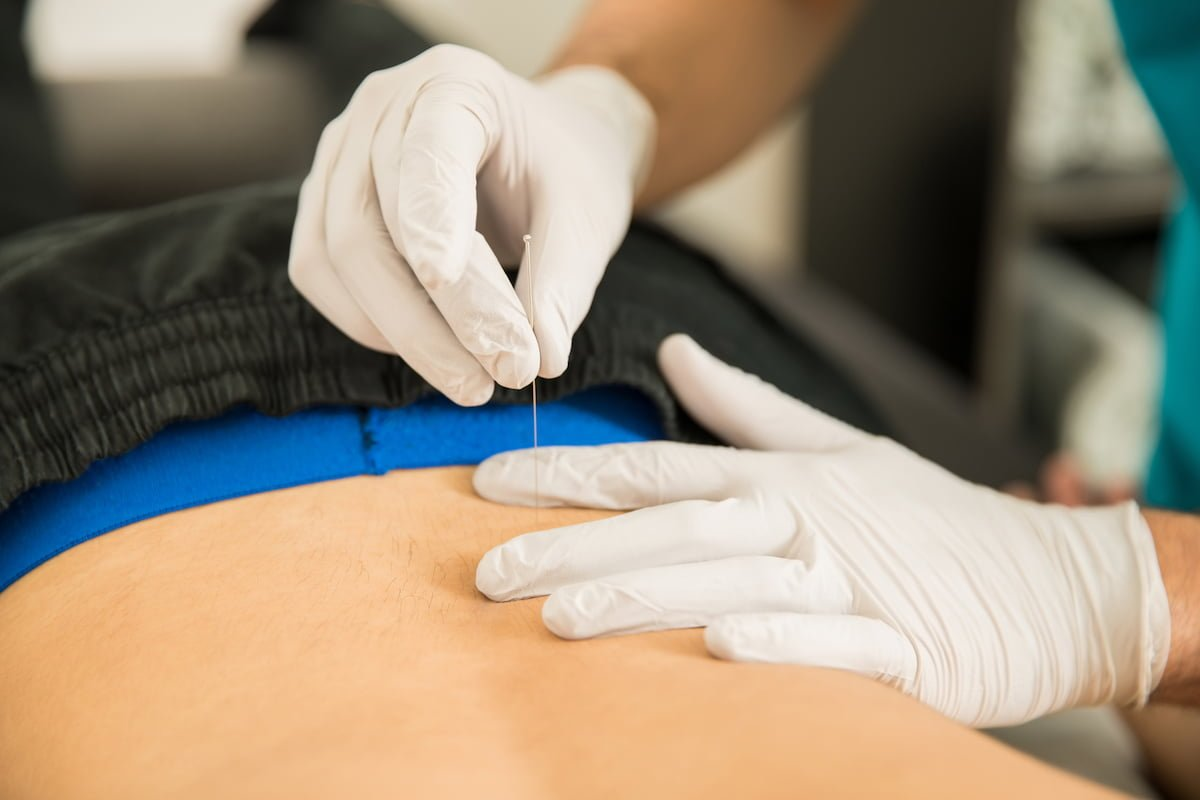 dry needling for pain